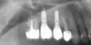 Dantų implantai po protezavimo