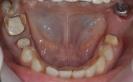 Protezavimas ant dantų metalo keramikos vainikėliais ir tiltais